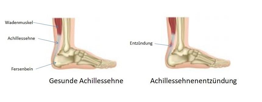 Achillessehnenentzündung